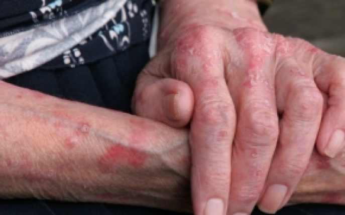 tratament cu erizipelă tratamentul bursitei infrapatellare a genunchiului