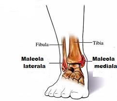 Probleme cu fractura de glezna. Cum poate face minuni recuperarea medicală pentru fracturi?