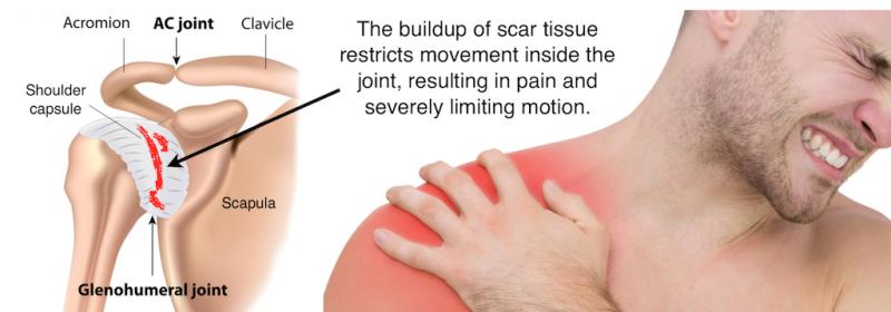 diabet dureri articulare