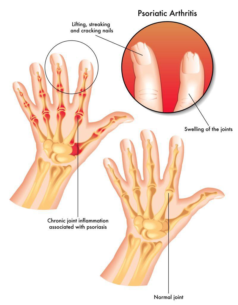 tratamentul simptomelor artrozei psoriazice