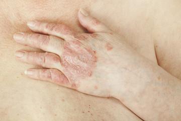 cum se tratează recenziile artritei psoriazice edem cu artroza articulației șoldului