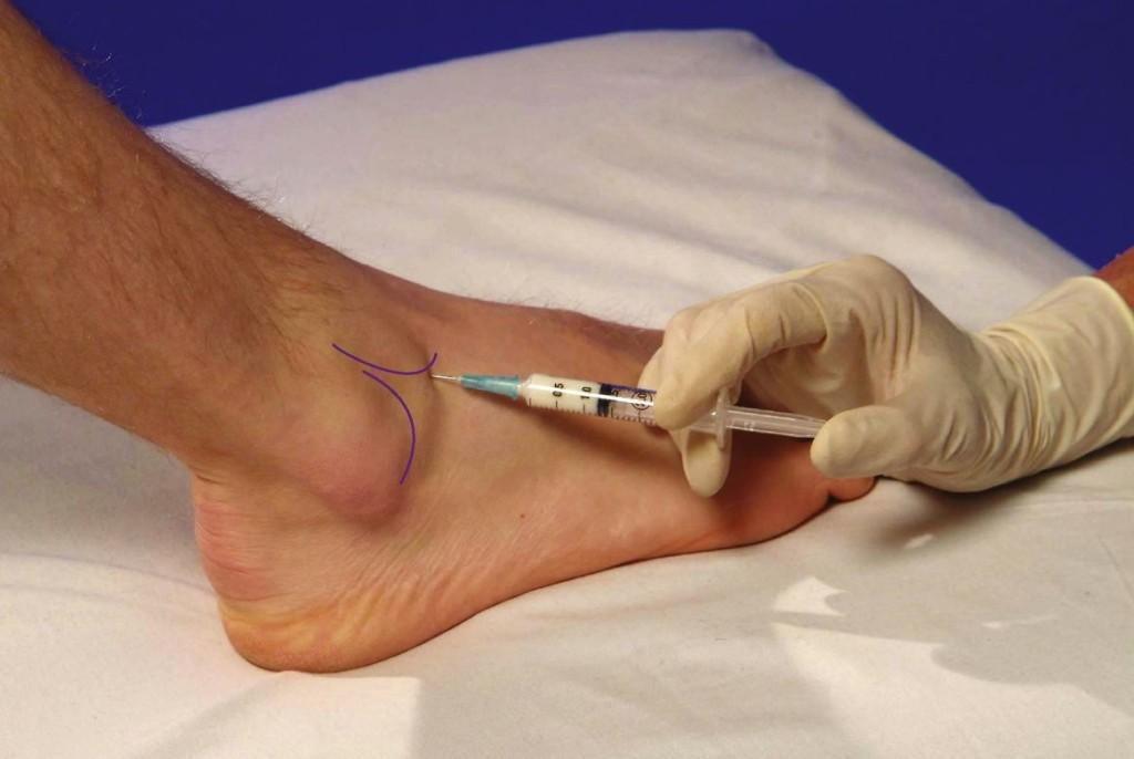 Etapa 3 Tratamentul artrozei tehnologii de tratare a artrozei