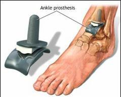 Don cu artroza articulației gleznei articulația șoldului doare înapoi