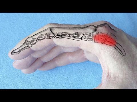 Unguent pentru inflamația articulațiilor mâinilor