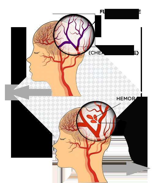 îmbunătățirea medicamentelor de circulație cerebrală pentru osteochondroza gâtului tratament comun cu creozot