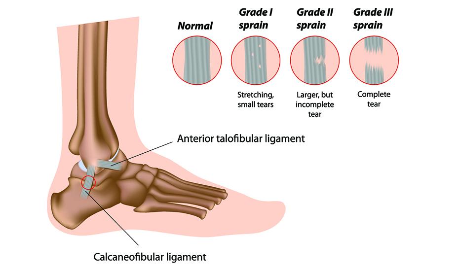 artroza inițială a articulației gleznei