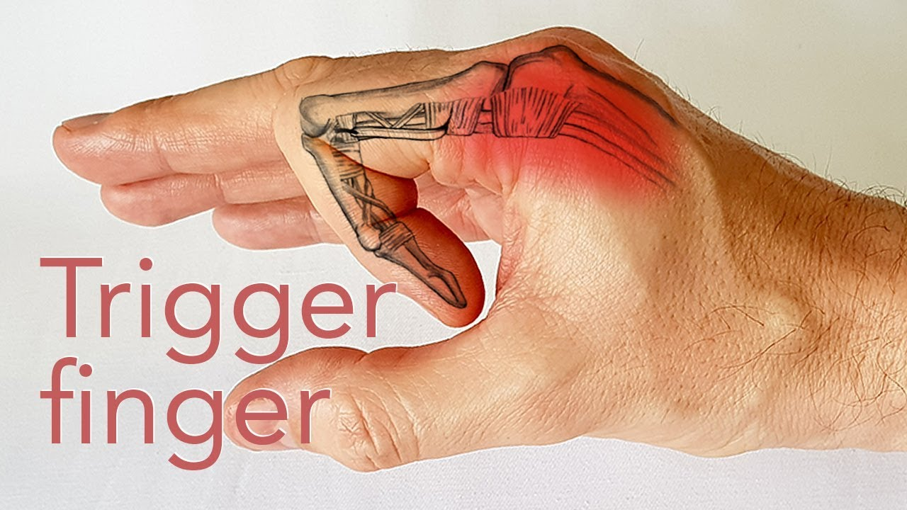 articulația degetelor doare mult timp