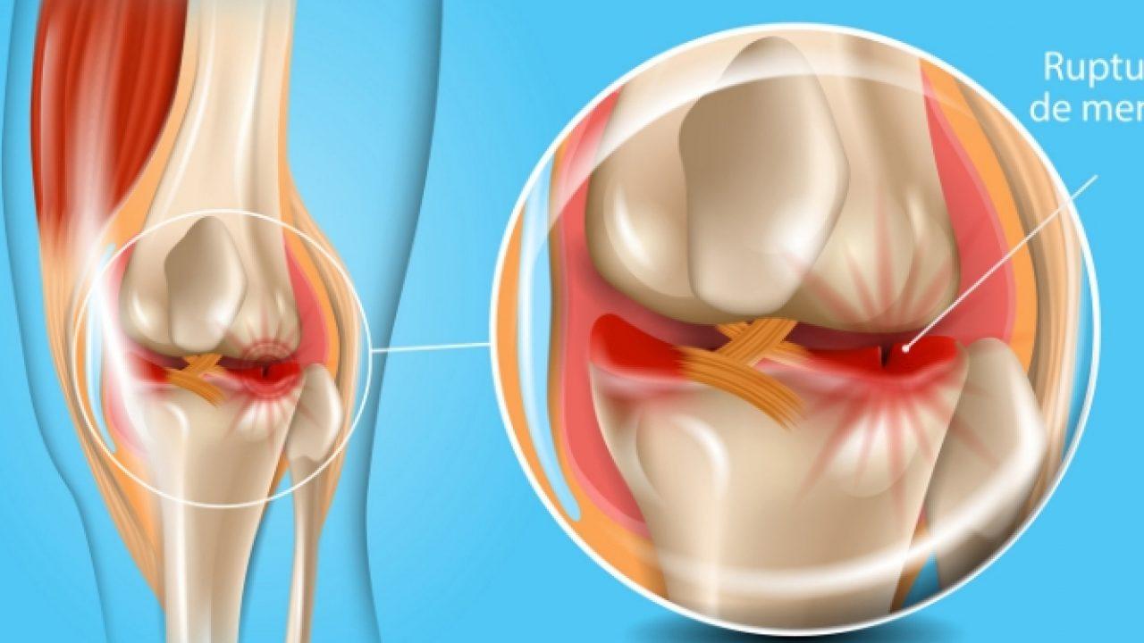 medicament de blocaj articular dureri de șold după întindere