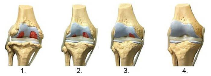 tratamentul artrozei articulației umărului 4 grade preparate pentru osteochondroza coloanei vertebrale toracice