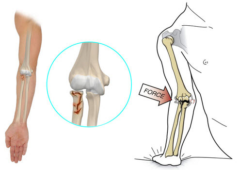 Refacerea mobilității articulației cotului după fractură