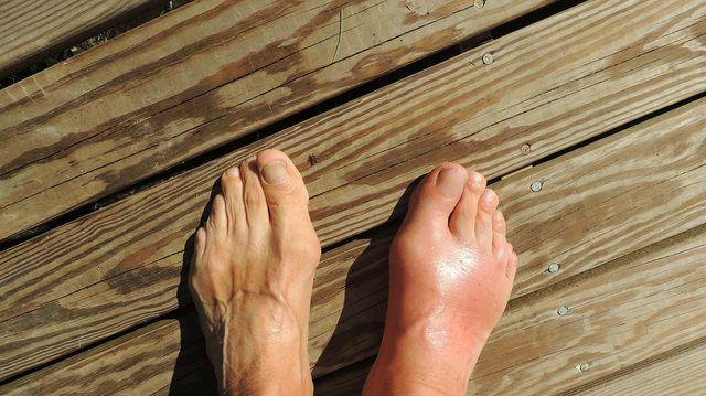 boli ale articulațiilor genunchiului picioarelor tratamentul durerii în oase și articulații