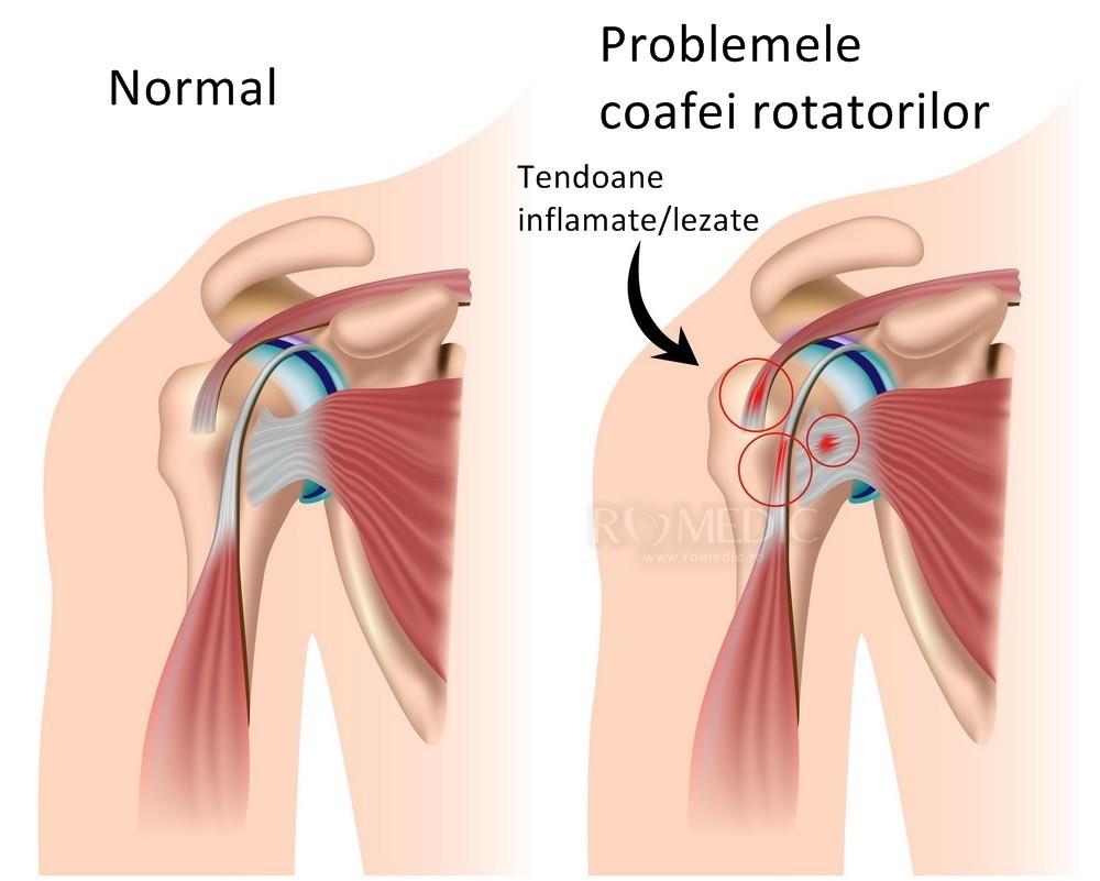 inflamația sacului articulației umărului