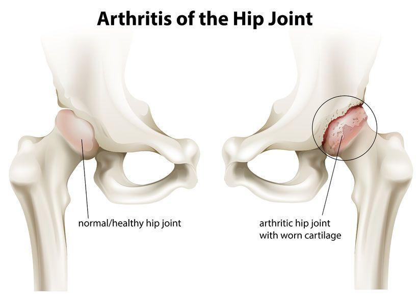 articulația artificială doare