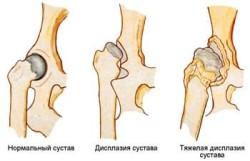masaj pentru durere în articulațiile mâinilor