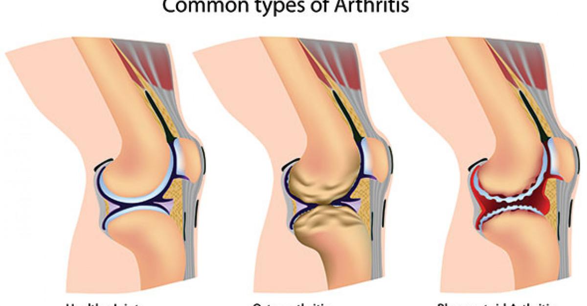 scârțâit și durere la genunchi