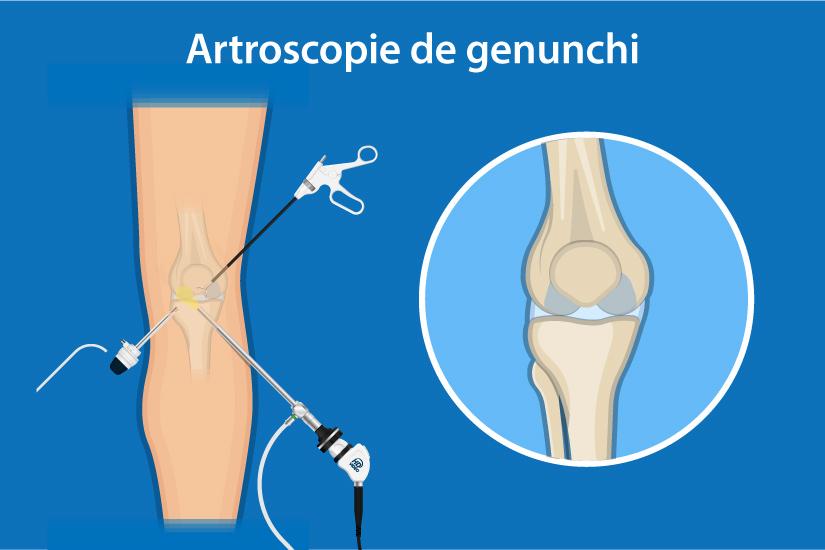 unde se schimbă genunchiul