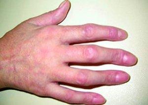boala de țesut conjunctiv lupus eritematos