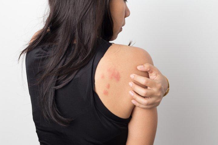 spital de artroză unguente pentru copii cu dureri articulare