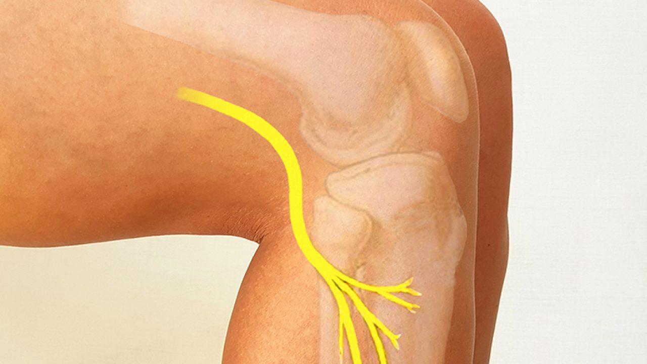 Afectarea nervului senzorial în tratamentul piciorului relief