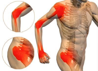 artralgie dureri articulare noi medicamente în tratamentul artrozei genunchiului