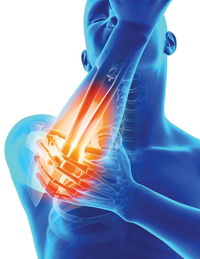 aplecarea durerii cotului brațului