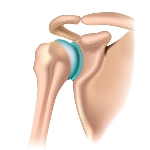 artroza tratamentului articulației umărului cu diprospan ce este luat pentru dureri articulare