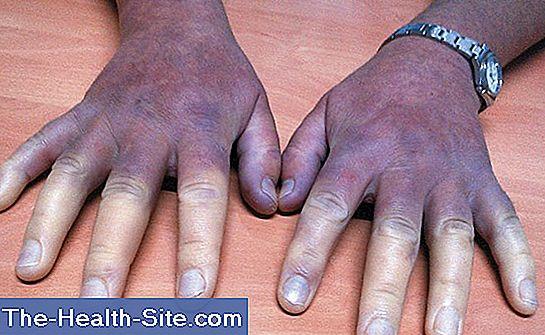 Sindromul Raynaud: simptome și tratament, tipuri de boală și etape de dezvoltare a acesteia