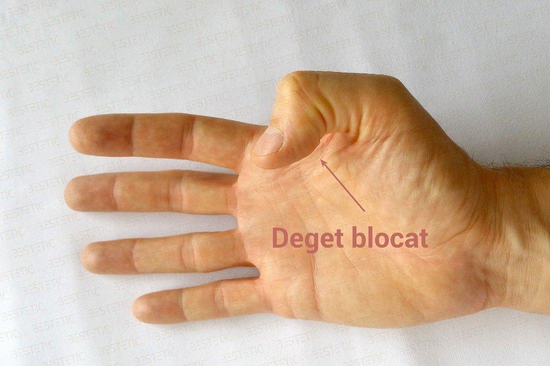 Degetul inel de durere articular
