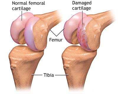 cum să scapi de articulațiile artritei