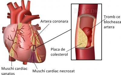 edem articular coronarian