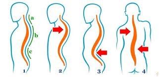 tratarea coloanei vertebrale și a anastaziei articulațiilor semenova cum să ușurezi rapid durerea articulației genunchiului