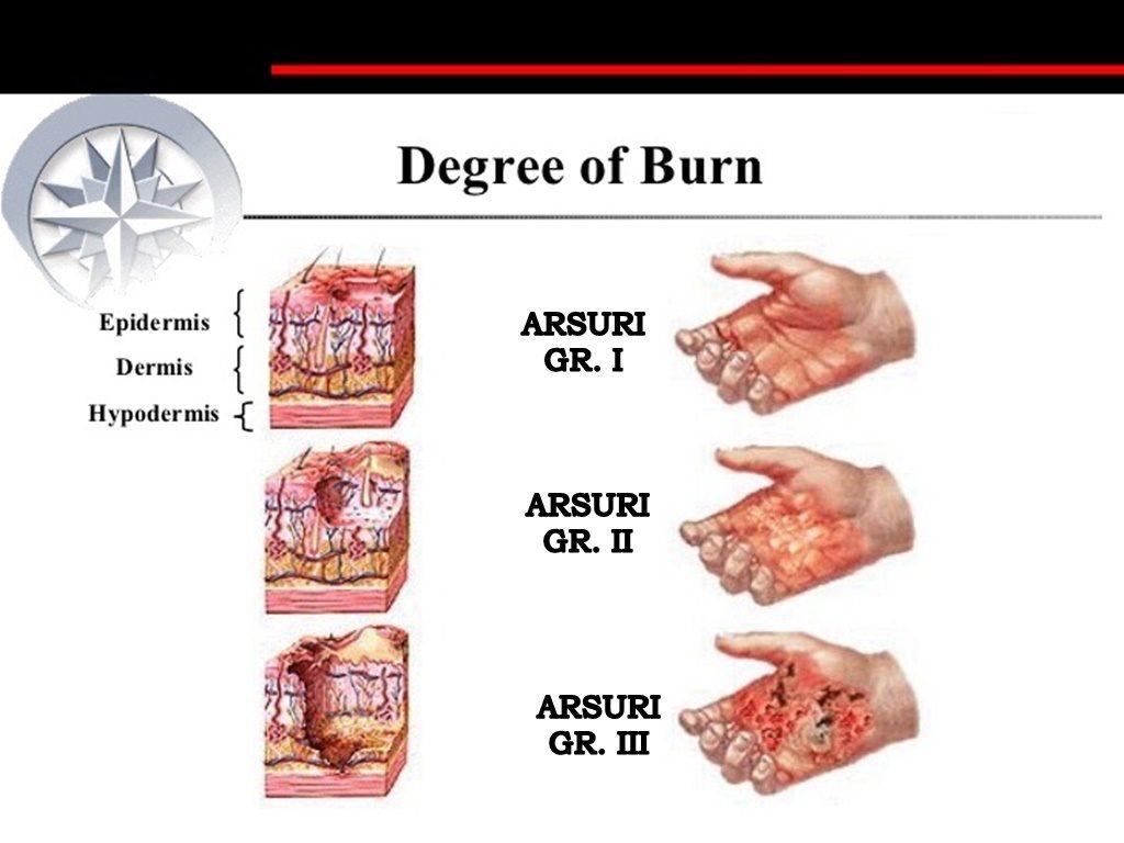 arsură de unguente articulare