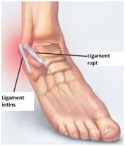 ruptura ligamente glezna