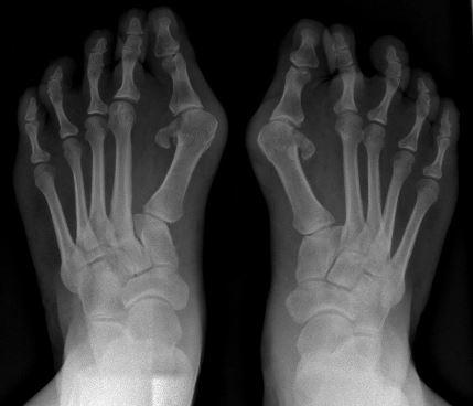 dureri articulare la înot cum este tratată artrita infecțioasă