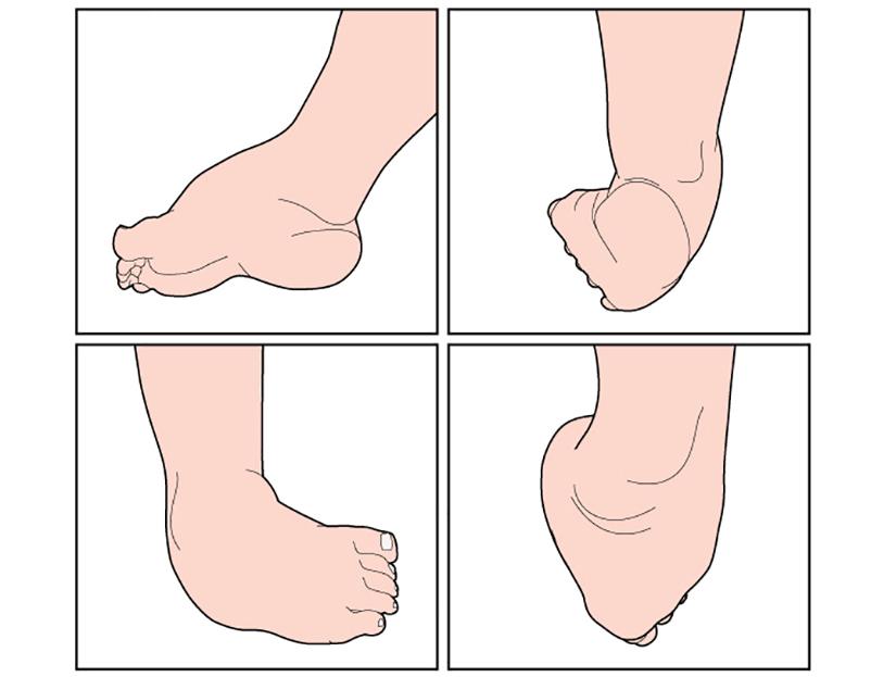 boli ale articulațiilor picioarelor Preț dimexid pentru dureri articulare