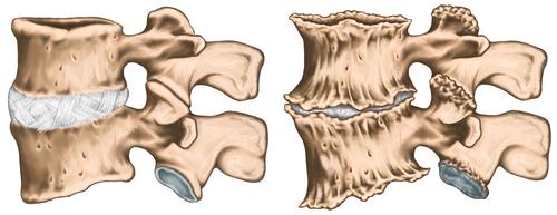 ce este artroza tratamentului articulației șoldului