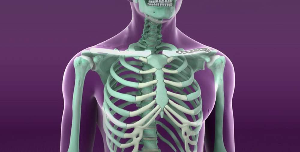 durere în articulația umărului claviculei