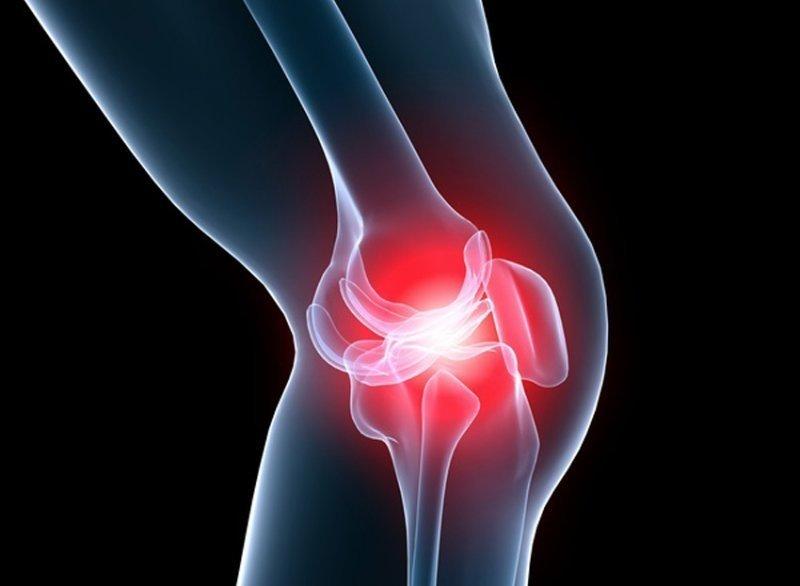 artroza eficientă a genunchiului