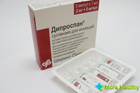 injecție de durere articulară diprospan