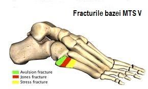 dureri articulare în metatars durere după căderea articulației umărului