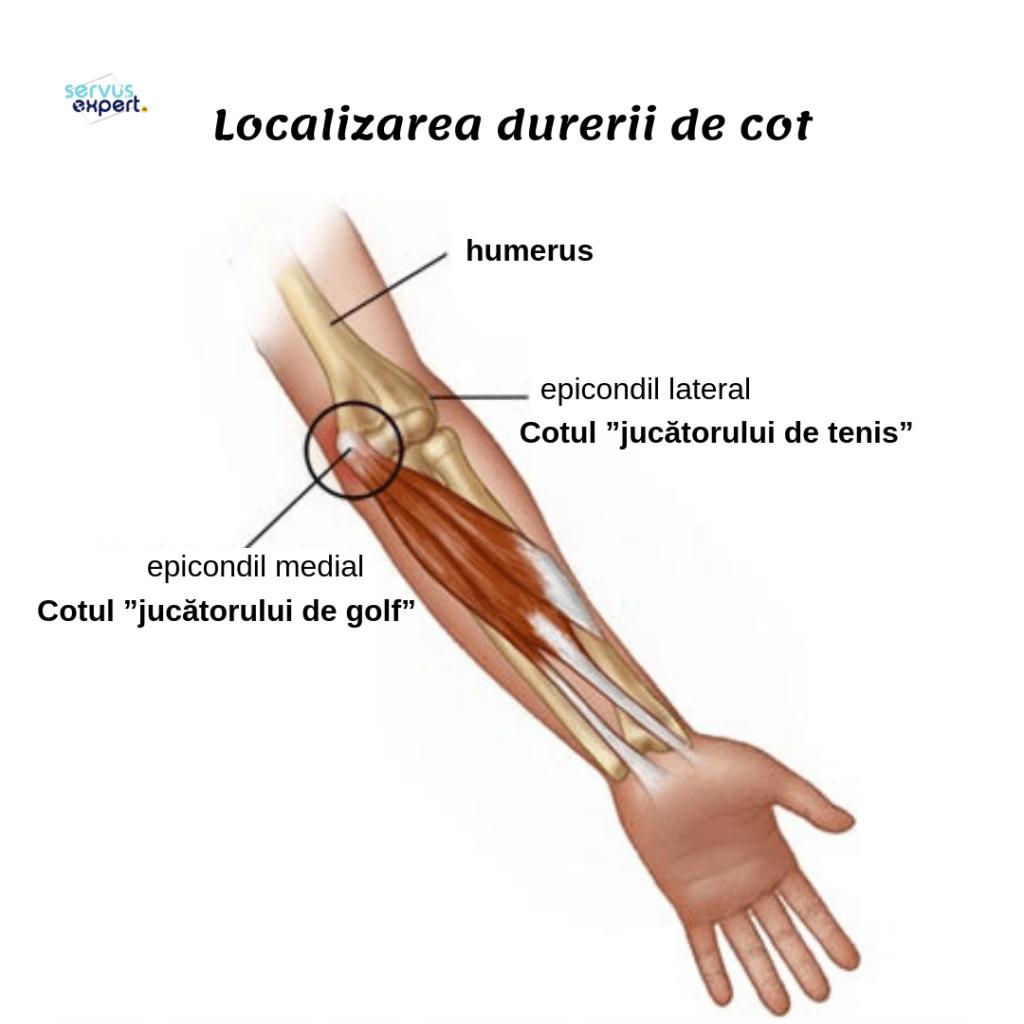 Durere foarte ascuțită în articulația cotului, bratul dureros