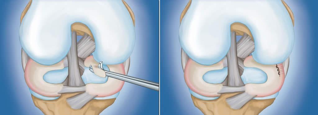 tratamentul artroscopic al afectării meniscului la genunchi
