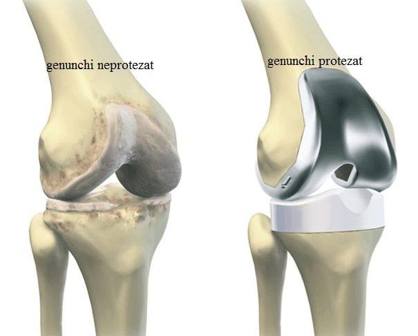 articulație din genunchi de titan Preț