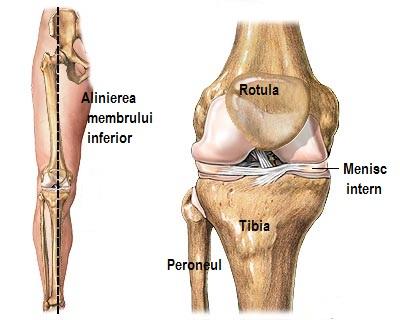 x-deformarea tratamentului articulației genunchiului