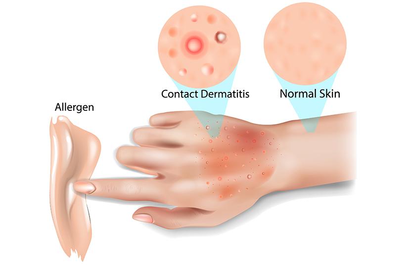 erupții cutanate ale pielii durere în partea dreaptă a articulației șoldului