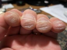 chitaristii dureri articulare
