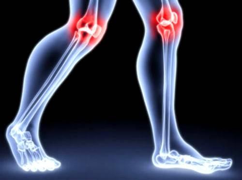 articulațiile rănite din cauza inactivității fizice