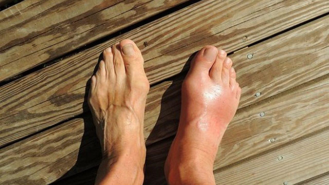 Unghiile de încălzire a unguentelor - Cu inflamația articulației degetului mare, tratament