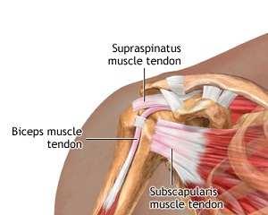 Supraspinatus ruptură tendon: simptome și tratament - Reabilitare