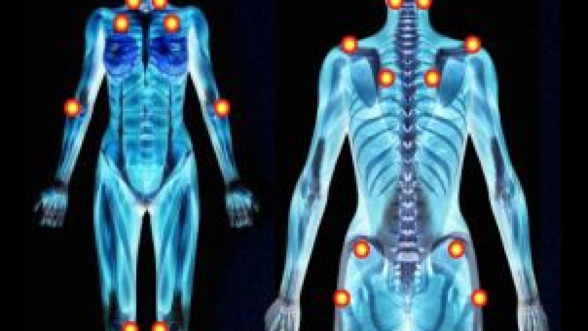 artroza ce tratament cum să restabiliți cartilajul articular după o vătămare